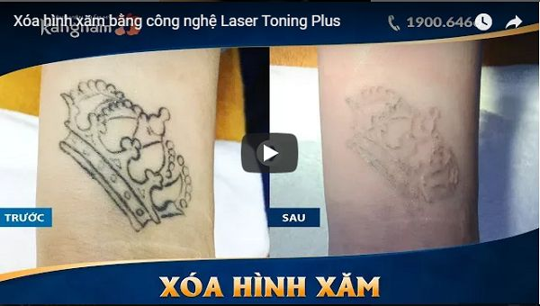 Xóa xăm bằng Laser Toning Plus8