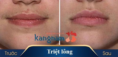 hình ảnh triệt lông kangnam 3