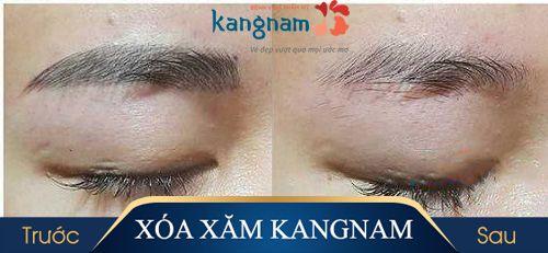 hình ảnh xóa xăm lông mày tại kangnam