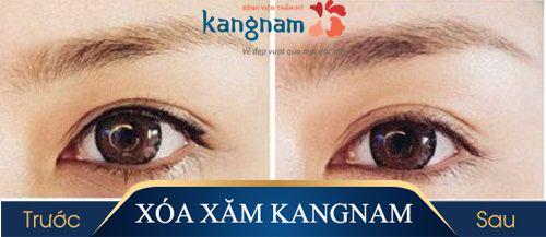 hình ảnh xóa xăm mí mắt kangnam