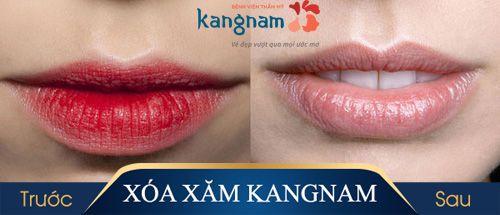 hình ảnh xóa xăm môi kangnam