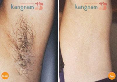 Triệt lông nách bằng công nghệ Diode Laser Kangnam
