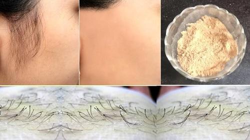 cách trị lông mặt