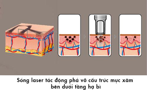 tẩy lông mày bằng laser
