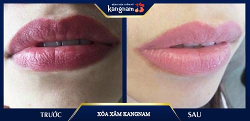xoá phun môi
