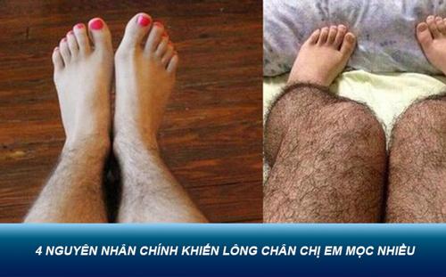 tẩy lông chân